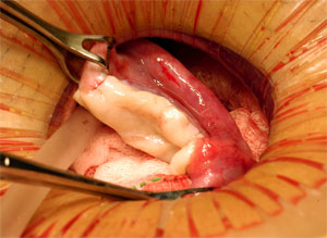 Ovary dissection.