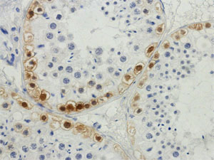 Normal spermatogenesis: Mage Stain