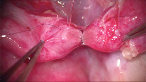 Second mucosal microscopic suture placed but not tied.