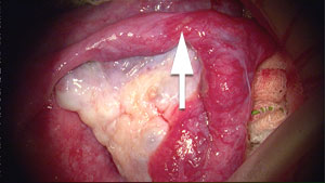 Long blocked tube draped over ovary, arrow points to site of tubal ligation.