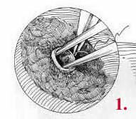 Tubal Ligation Reversal image 1