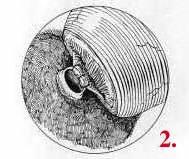 Tubal Ligation Reversal image 2