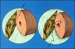 Fig. 15-4 First delicate suture to connect the tiny epididymis tubule to the inner canal of the vas, end to side.
