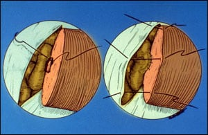 Fig. 15-5 Final sutures for connecting the vas to the epididymal tubule, bypassing all secondary blockages.