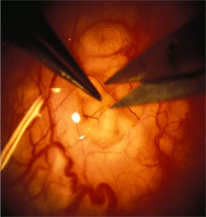 Microsurgical puncture of obstructed epididymal tubule to obtain sperm.