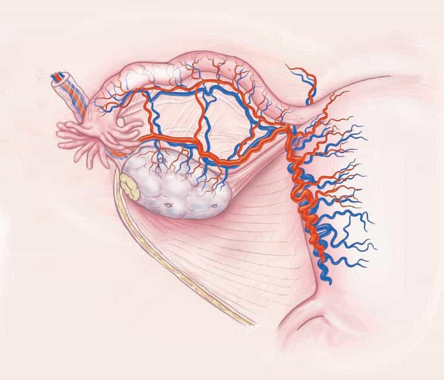 NEJM_OvaryTransplantDiagramA