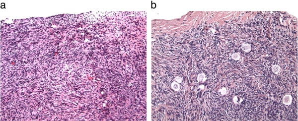 Figure 1: (a) Showing the absence of primordial or preantral follicles in ovarian biopsies of this candidate for ovarian transplantation compared with (b) that in her fertile sister.