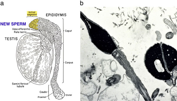 Figure 8: A diagram of the serial transection of the epididymis in a patient who had undergone vasectomy but has no sperm in the vas fluid. At some point proximally in the epididymis, secondary epididymal obstruction is bypassed and then normal motile sperm are seen.