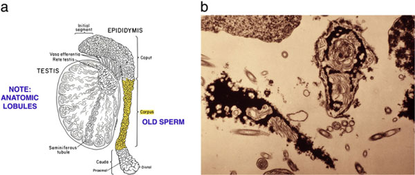 Figure 9: A diagram of the serial transection of the epididymis in a patient who had undergone vasectomy but has no sperm in the vas fluid. At some point proximally in the epididymis, secondary epididymal obstruction is bypassed and then normal motile sperm are seen.