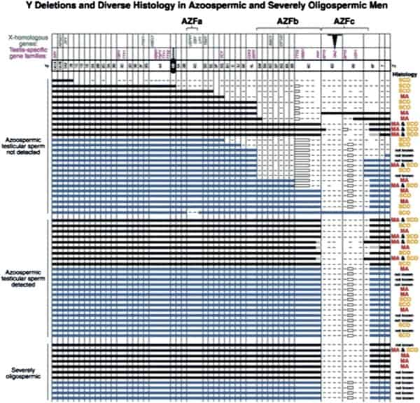 Figure 10: Early map of major Y chromosome deletions in azoospermic men and the diversity of pathologic defects [118].