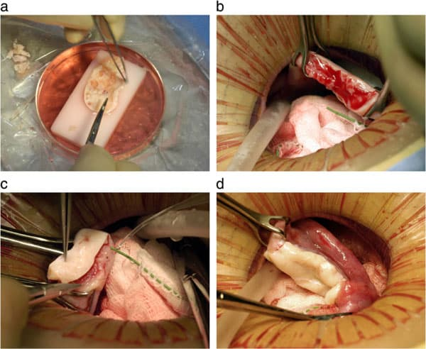 Figure 2: Steps in the procedure of ovarian transplantation between MZ twin sisters: (a) preparation of donor ovarian cortex by dissection in a Petri dish on ice; (b) preparation of recipient ovarian medulla; (c) attaching donor cortical tissue to recipient ovarian medulla; (d) attaching thawed donor cortical tissue for re-transplant to the recipient medulla.