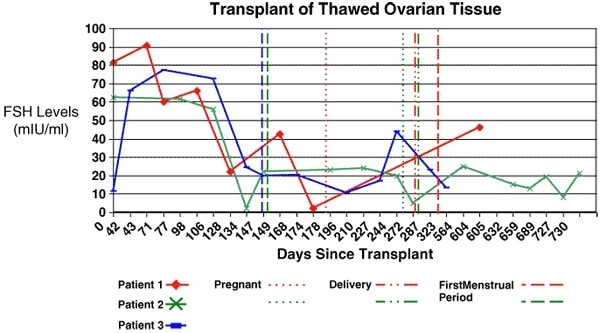 Figure 5: Transplant of thawed ovarian tissue. After a frozen cortical re-transplant, serum FSH declined again to normal levels, similar to those of fresh transplants.