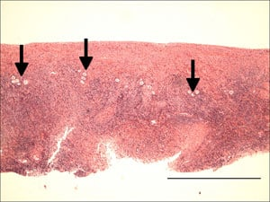 Figure 11. All oocytes (arrows) were located in the cortical area of the human ovarian tissue. Note that they were all located within 0.75 mm of the surface, allowing much thinner slices to be made than can be obtained by hand, or than have been used in previous studies. Scale bar represents 1 μm.