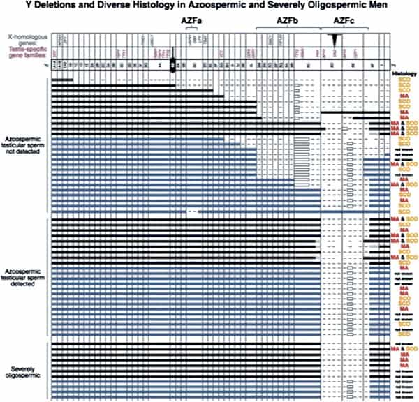 Figure 1. Early map of major Y chromosome deletions in azoospermic men and the diversity of pathologic defects (3).