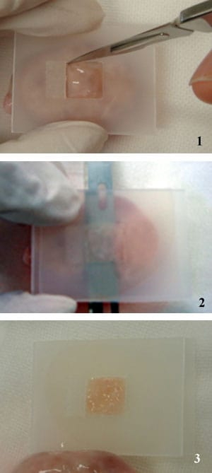 Figure 1: Vitrification procedure: the Cryotissue method. The ovarian tissue slicer was developed, with a plate to produce 1 × 10 × 10 mm slices. (1) The tissue slicer was put on the surface of ovary. (2) Then another plate was put on the tissue slicer, the ovary was cut between the slicer and the surface of ovary by using a sharp edge. (3) The ovarian tissue was cut into 1 × 10 × 10 mm slices.