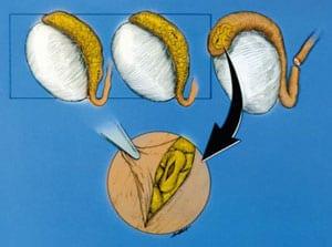 Diagrams of preparing epididymal tubule for end-to-side vasoepididymostomy.