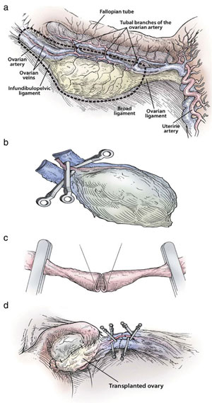 Figure 3: Steps in the procedure of intact ovary microvascular trans- plantation: (a) depiction of donor oophorectomy, (b) microsurgical isolation of donor ovary blood supply, (c) end-to-end anastomosis of ovarian blood vessel, (d) completed anastomosis of ovarian artery and veins.