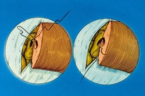 Diagram showing first 3 posterior mucosal sutures for end-to-side vasoepididymostomy.