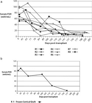 Figure 4: (a) The eight fresh transplant cases showed a dramatic decline in Day 3 serum FSH by 80–140 days post-operatively corre- sponding approximately to the resumption of menses (Table II). Case R8 was the microvascular whole-ovary transplant, the results of which are not significantly different from cortical grafts. (b) After a frozen cortical re-transplant for Case R1, serum FSH declined again to normal levels, similar to those of fresh transplants.