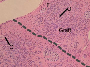 Figure 5. Histological section of vitrified bovine ovarian tissue 44 days after autotransplantation. The graft is above the dotted line and the original cortex is under the dotted line. Interstitial tissue of the graft was as good as in the original bovine ovary. The blood vessels (V), oocytes (O) and follicles (F) of the graft were also morphologically normal with no sign of diminution in numbers. Haematoxylin–eosin staining. Scale bar represents 50 μm.
