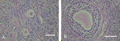 Figure 9. Morphologically normal oocyte in a pre-antral follicle from vitrified-warmed human ovarian tissue. (A) Normal oocyte was surrounded by one or two layers of somatic cells in normal interstitial tissue of vitrified ovarian tissue. Haematoxylin–eosin staining. (B) Normal oocyte was surrounded by three or four layers of somatic cells in normal interstitial tissue of vitrified ovarian tissue. Scale bar represents 50 μm.