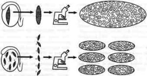 Figure 1. Diagram of testicular mapping methodology, Sertoli cell-only. Microsurgical and histological observations of a large contiguous slice of testicular tissue is shown in the upper panel. A similar study of multiple discontinous biopsies is illustrated in the lower panel. In Sertoli cell-only, the larger tubules contain spermatozoa, and the tubules devoid of spermatozoa are much thinner in diameter.
