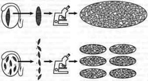 Figure 2. Diagram of a testicular mapping methodology showing maturation arrest (see Figure 1 for explanation). In this case, tubules with spermatozoa are similar in size (no bigger) than tubules without spermatozoa.