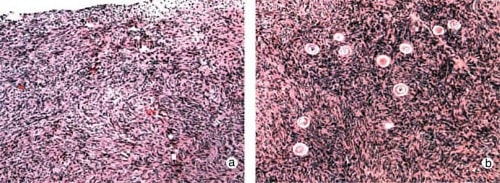 Figure 1: Case R2 showing (a) the absence of primordial or preantral follicles in ovarian biopsies of this candidate for ovarian transplantation compared with (b) that in her fertile sister.