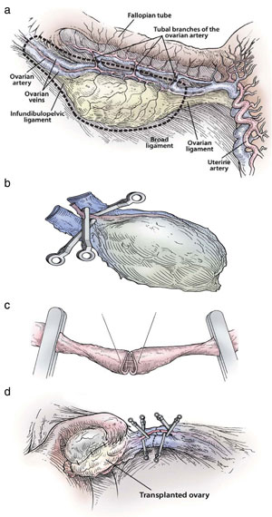 Figure 3: Steps in the procedure of intact ovary microvascular transplantation: (a) depiction of donor oophorectomy, (b) microsurgical isolation of donor ovary blood supply, (c) end-to-end anastomosis of ovarian blood vessel, (d) completed anastomosis of ovarian artery and veins