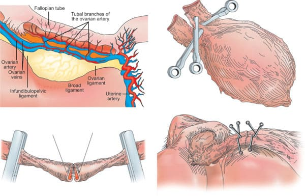 Figures 42.3A to D: Steps in the procedure of intact ovary microvascular transplantation: (A) Depiction of donor oophorectomy; (B) Microsurgical isolation of donor ovary blood supply; (C) End-to-end anastomosis of ovarian blood vessel; (D) Completed anastomosis of ovarian artery and veins.