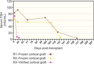 Figure 42.4B: After a frozen cortical re-transplant, serum FSH declined again to normal levels, similar to those of fresh transplants