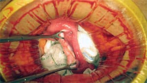 Healthy ovarian tissue is implanted in the recipient completing the ovary tissue transplant.