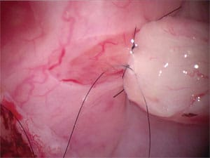 Perfect microsurgery to bypass epididymal obstruction.
