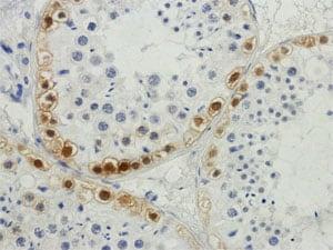 Normal spermatogenesis: Mage Stain.