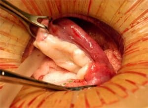 Transplantation of frozen ovarian tissue.