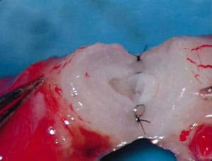 Figure 1. Picture of 2-layer microsurgical vasovasostomy.