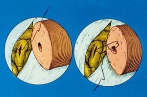 Diagram showing placement of first mucosa suture for end-to-side vasoepididymostomy.
