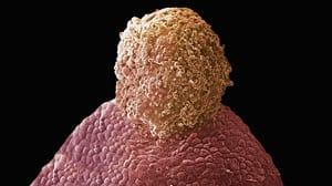 Mammalian ovulation
