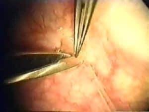 Sperm Aspiration: removing sperm from the epididymis