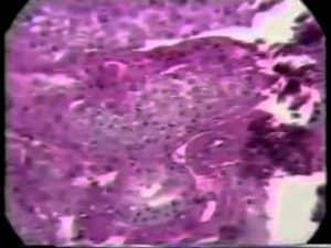 Sperm Distribution In The Testes of Azoospermic Men