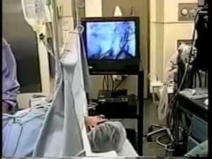 Dr. Silber Details Sperm Retrieval With Local Anesthesia