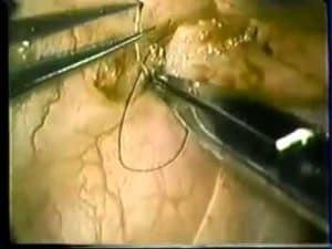 Microsurgical End-To-Side Vasoepididymostomy - Technical Video