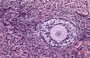 Ovarian tissue after the thaw — ready for reimplantation. Courtesy of The Infertility Center of St. Louis
